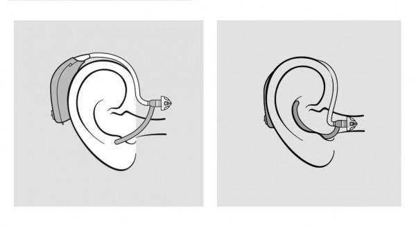 Oticon EarGrip Halterung Platzierung im Ohr